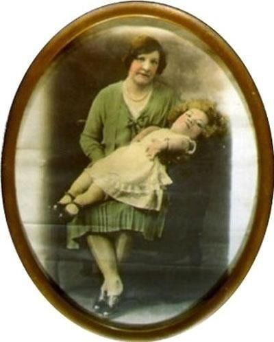 Женщина младенец Медуза ван Аллен по прозвищу Маленькая мисс Солнышко родилась в 1908 году и страдала от уникального генетического заболевания костей, в результате которого росла только ее