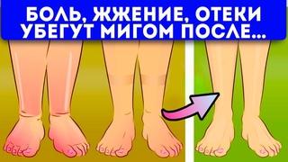 Невероятно, ноги как пушинки!15 домашних способов от отеков ног
