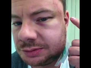 Ди-джея Smash жестоко избили в пермском ночном клубе