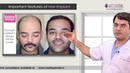 Before Hair Transplant you must know | Dr Suneet Soni Medispa India | Jaipur | Delhi