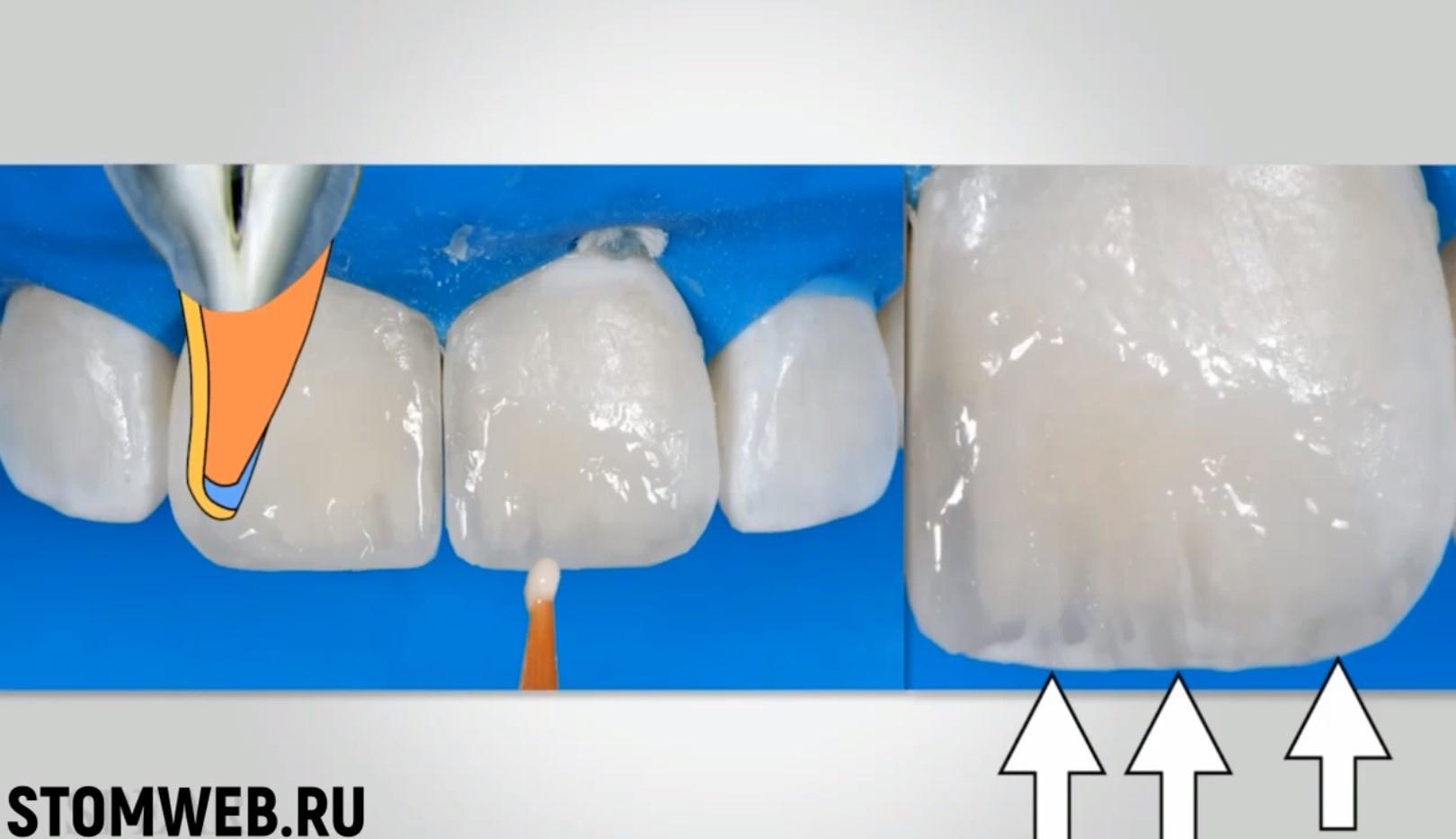 restavracii-frontalnyh-zubov