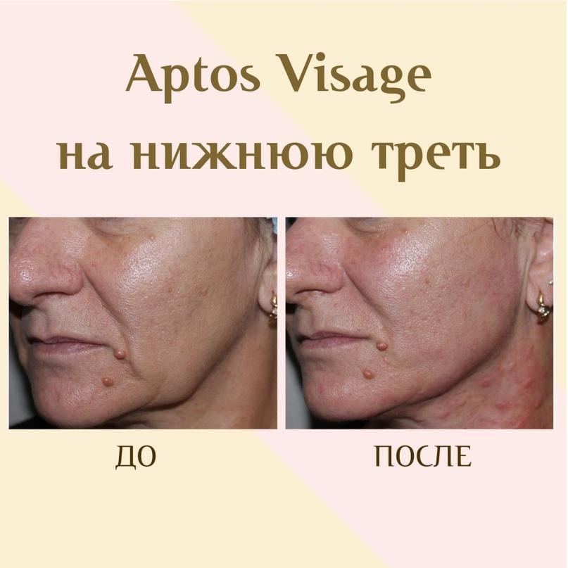Коррекция в зоне нижней челюсти., изображение №13
