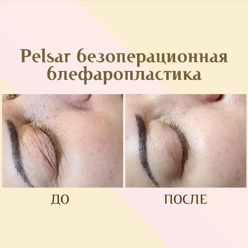 Область глаз. Старение и лечение., изображение №8