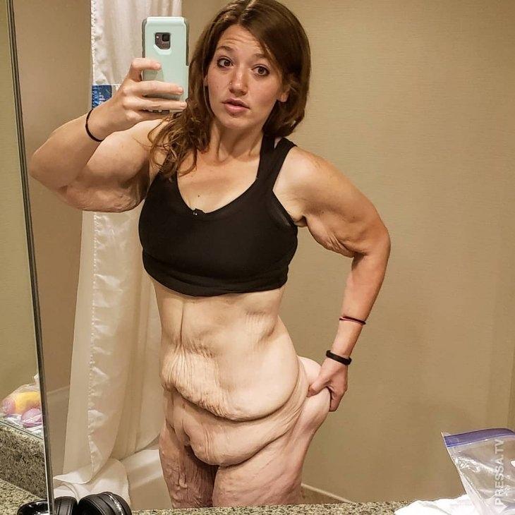 Девушке, похудевшей на 141 кг, врачи удалили лишнюю кожу