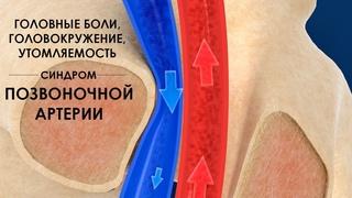 Головные боли, головокружение, утомляемость - синдром позвоночной артерии