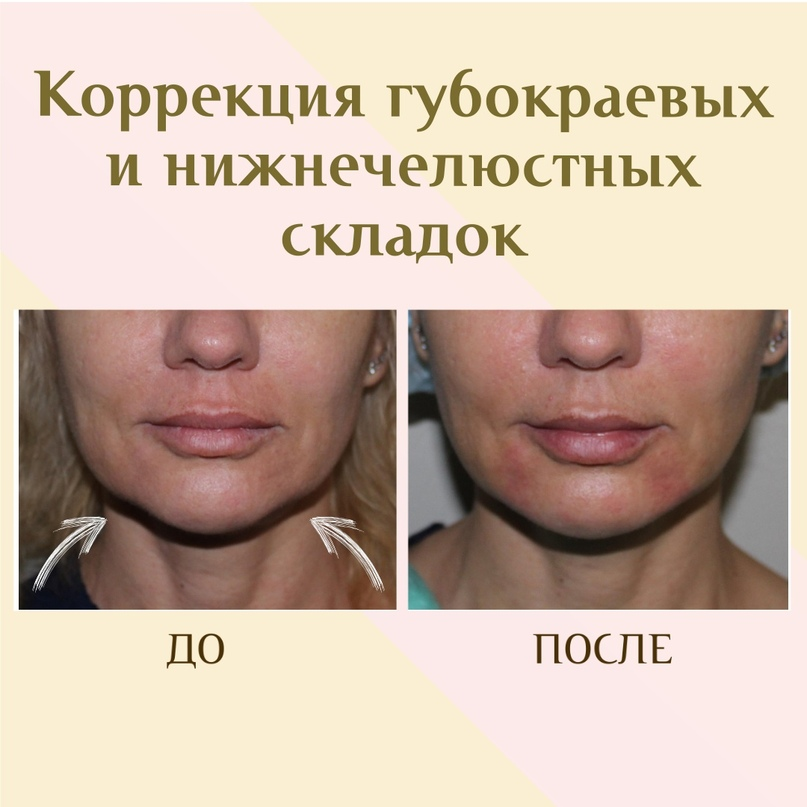 Губы и область вокруг рта., изображение №17
